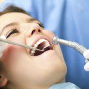 Dental Fillings in Narre Warren North